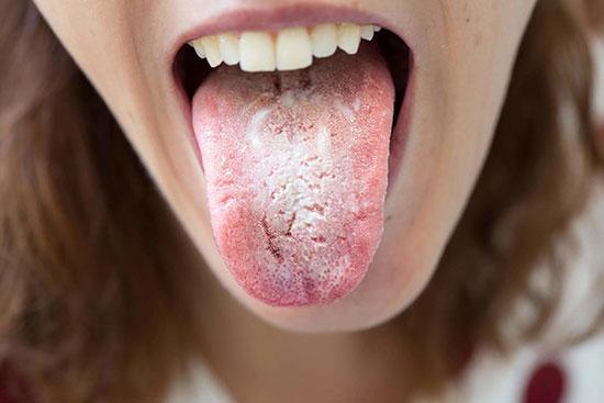 برفک دهان چیست؟ علائم و راه های درمان آن را بشناسید